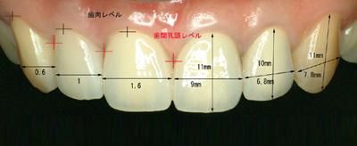 平均的な歯冠長